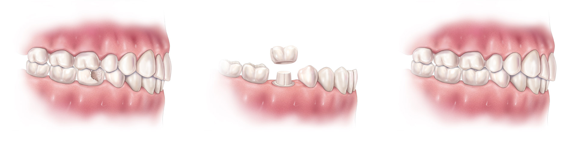 Cerec Crown