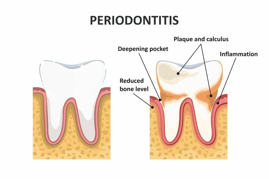 periodontal evaluation